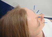 Akupunktur gesicht